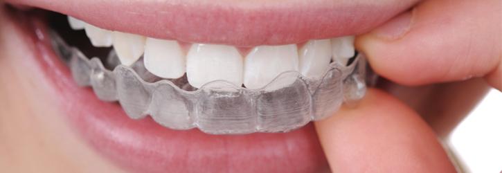 ortodonzia2-violantestudio copia