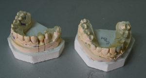 protesi-fissa2-violante